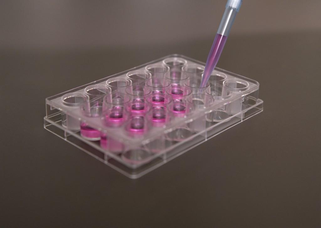 働く女性のがん特約の解約